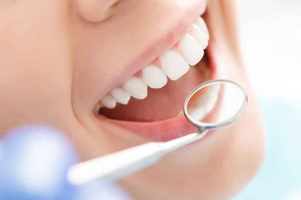 Approfondimenti sulla parodontite