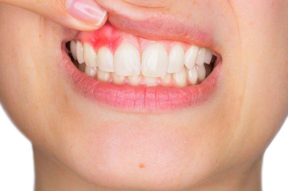 Diagnosi della parodontite